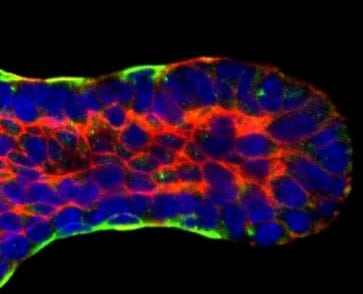 3D imaging and computer modeling capture breast duct development | Tech News