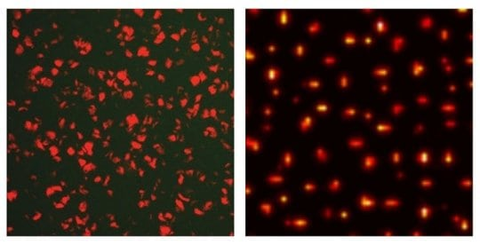 Engineering bacteria to exhibit stochastic Turing patterns | Tech News