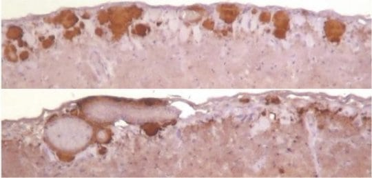Cross-species prion adaptation depends on prion replication environment | Tech News