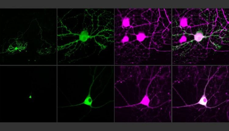 Next-generation optogenetic molecules control single neurons | Tech News