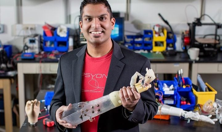 Prosthetic Arm System Provides Sensory Feedback to People who had Lost a Limb | Tech News