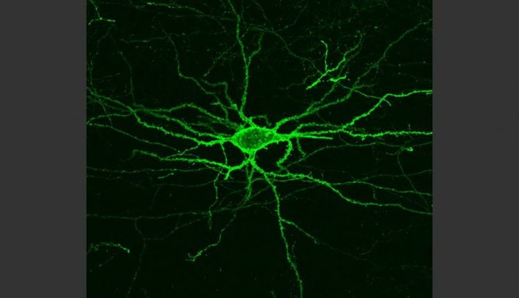 Seeing the brain's electrical activity | Tech News