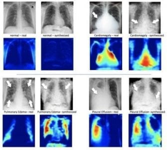 Training artificial intelligence with artificial X-rays | Robotics