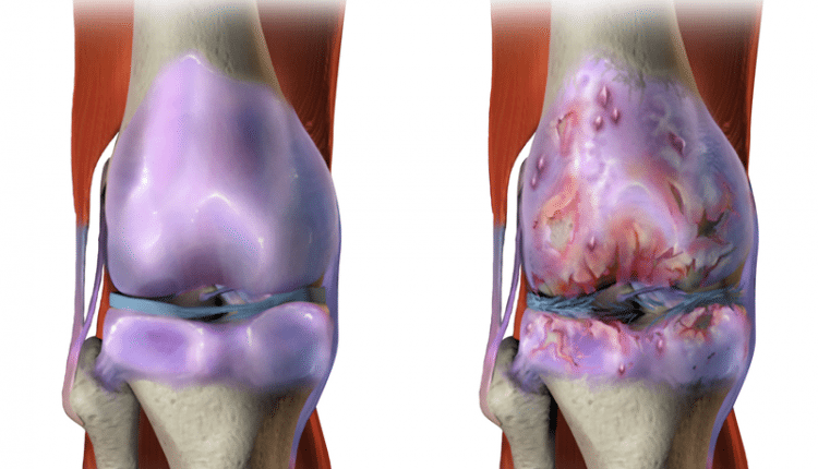 Pfizer and Lilly claim win for NGF pain drug in osteoarthritis | Bio Tech