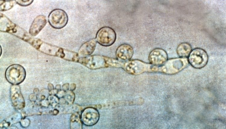 The mechanisms of genetic diversification in Candida albicans | Bio Tech