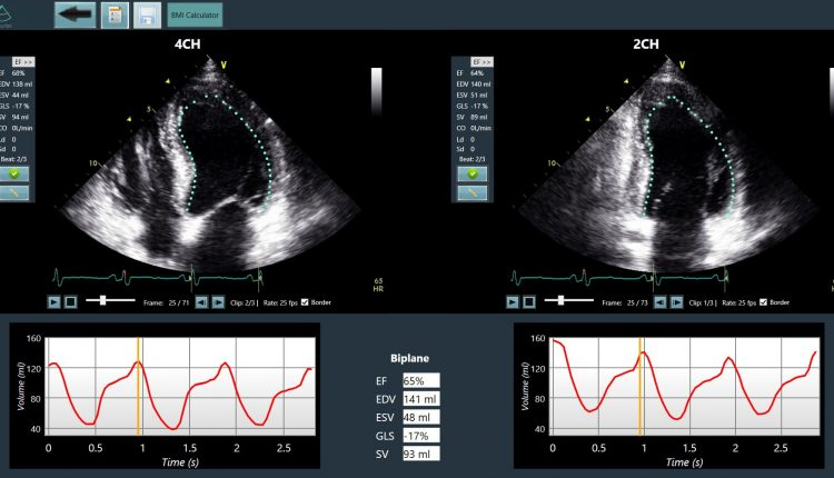 Dia Imaging Analysis raises $5 million for AI that analyzes ultrasound scans | Tech Industry