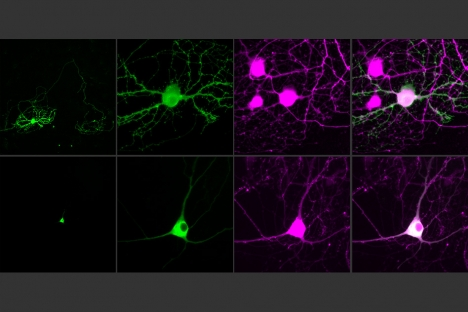 Next-generation optogenetic molecules control single neurons | Social