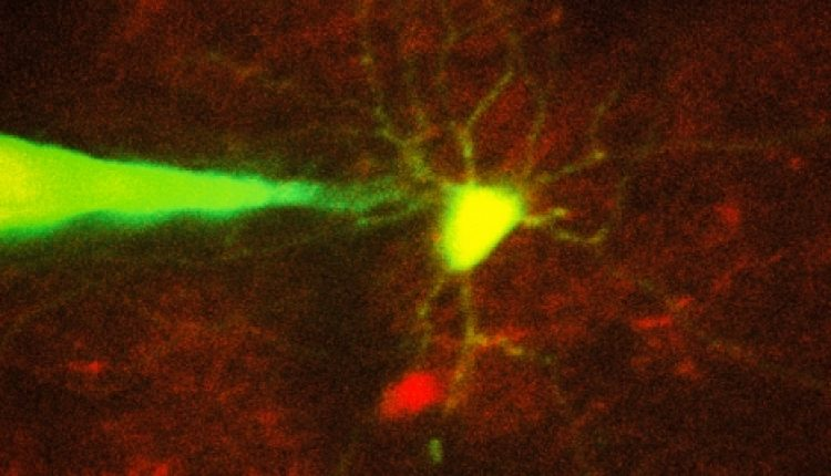 Robotic system monitors specific neurons | Social
