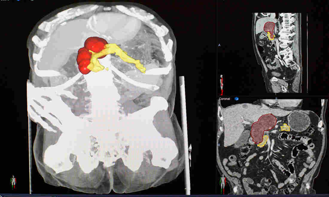 For Some Hard-To-Find Tumors, Doctors See Promise In Artificial Intelligence | Artificial intelligence 5