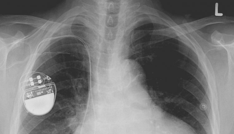 Life-saving pacemakers could be hacked with malware   Innovation & Feature
