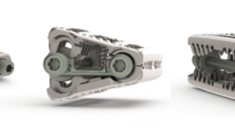 Adjustable fusion implant maker SpineEX files for $17M Nasdaq IPO | Digital Science