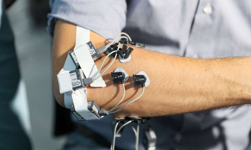 A smart artificial hand for amputees merges user and robotic control